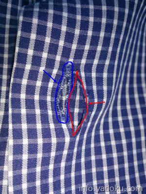 シャツの破れた部分の拡大写真.jpg  3096×4128